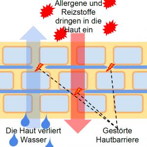 Neurodermitis Gestörte Hautbarriere
